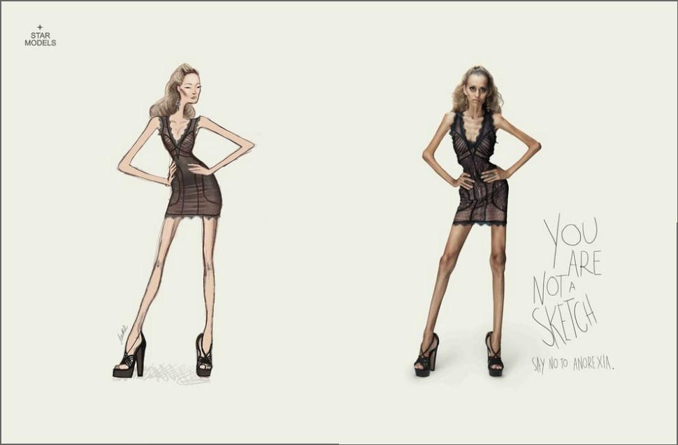 anoreksja 1
