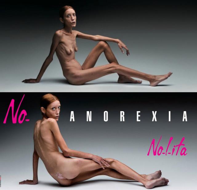 anoreksja 4