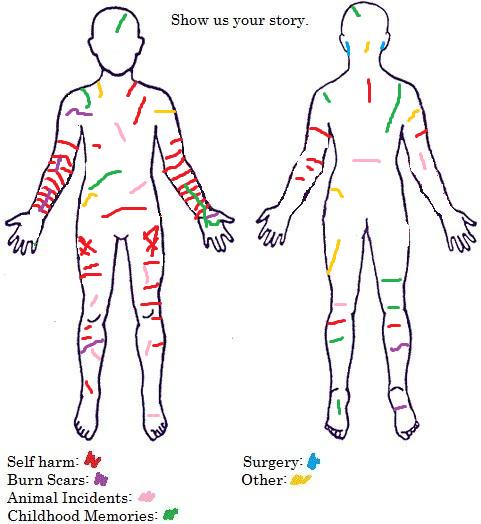 self_harm_story_by_emoxdancer-d6xuwnn